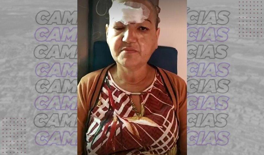 [Amigos realizam campanha para ajudar moradora de Camaçari que tem câncer de pele]