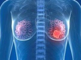 [Sete verdades que parecem mito sobre o câncer de mama]