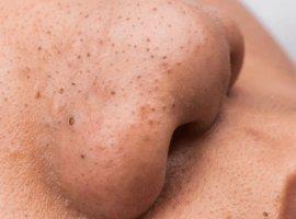 [Cravos na pele: aprenda a fazer cera caseira que remove os pontinhos pretos]