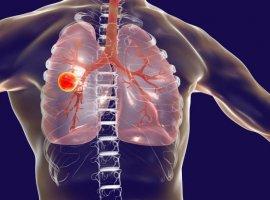[Sua gripe forte pode ser, na verdade, tuberculose: 5 passos para diferenciar]