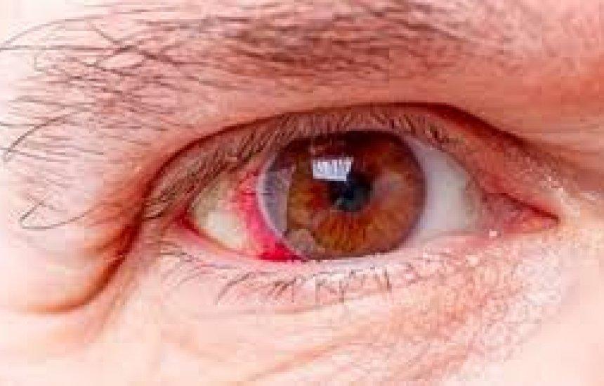 [Glaucoma: 10 principais sintomas e como tratar]