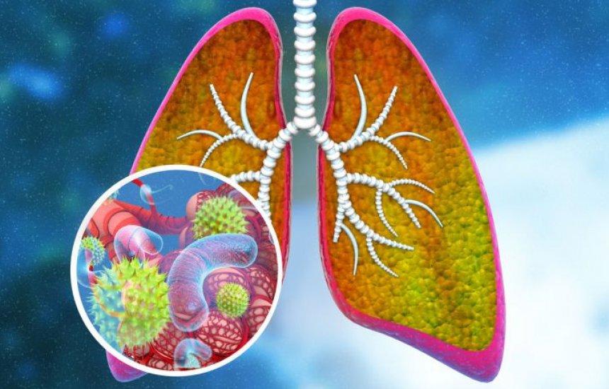 [Pneumonia: viral ou bacteriana, sintomas iniciais, tratamento e transmissão]