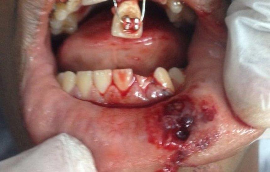 [Cirurgias faciais estão entre 3 mil socorros realizados durante o carnaval]