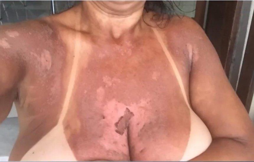 [Mulheres denunciam clínica por queimaduras durante bronzeamento com fitas]