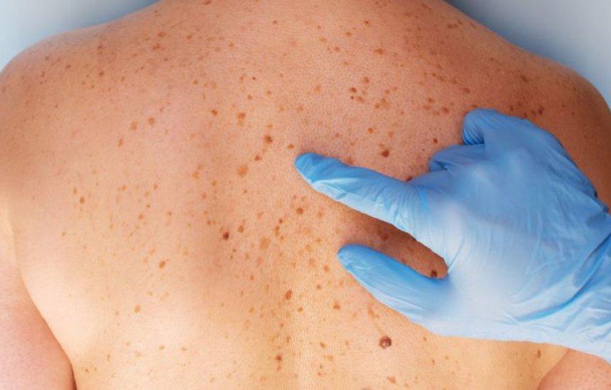 [Manchas de sol na pele: como tratar no rosto, braço, costas, colo e mais]