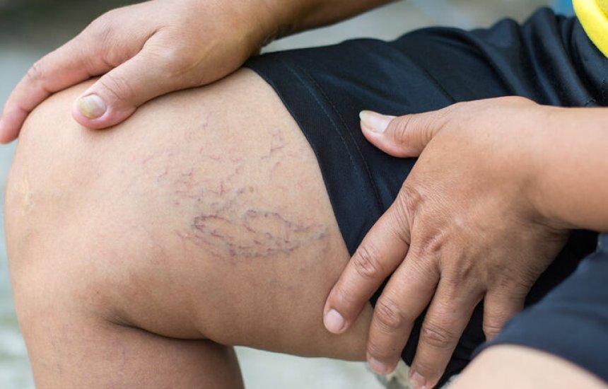 [Comer fibras ajuda a impedir que sua perna se encha de vasinho e varizes]