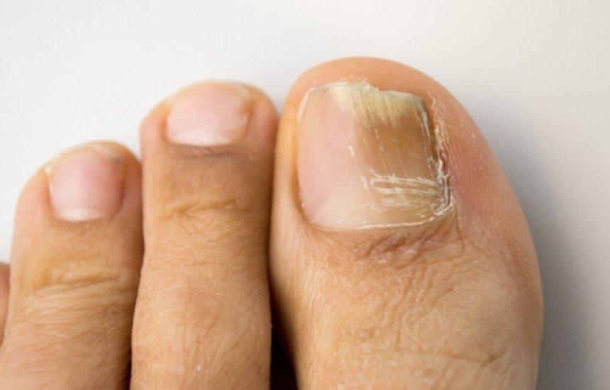 [Melhores remédios caseiros para eliminar fungos e manchas amarelas das unhas]