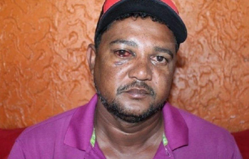 [Ex-vereador e personal acusam PMs de agressão na Bahia; vídeo mostra ação]