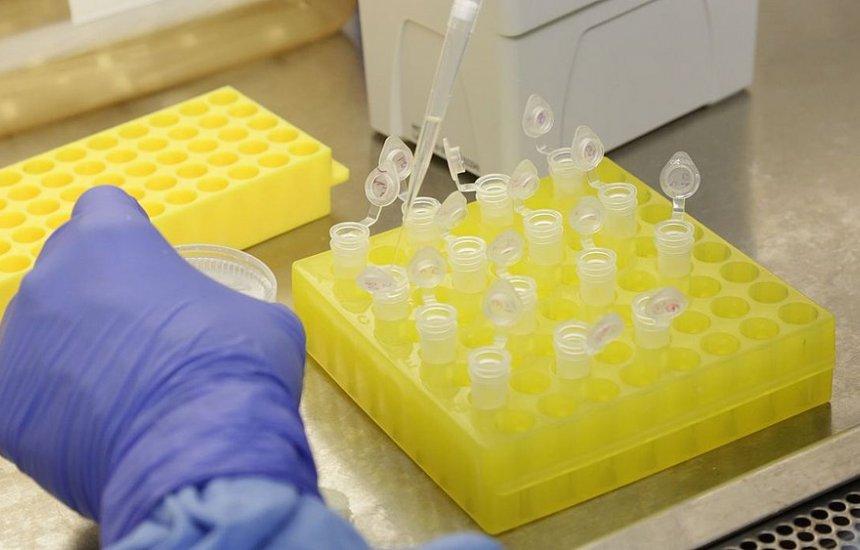 [França registra primeira morte pelo coronavírus]