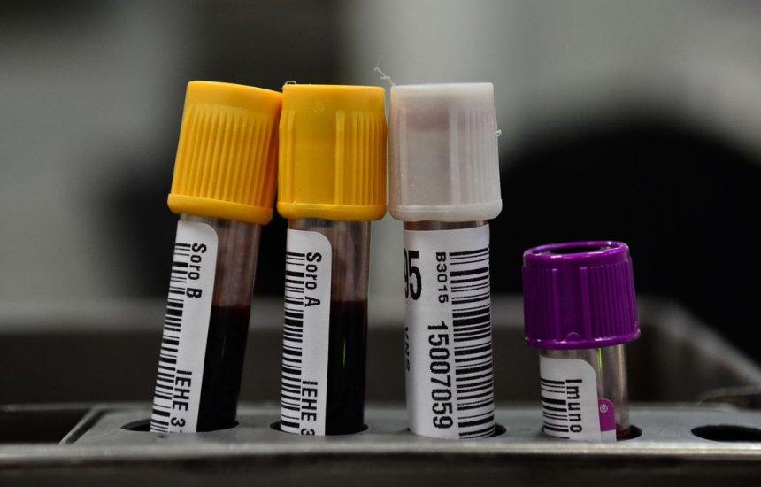 [Hemorio inicia testes com plasma sanguíneo no tratamento de covid-19]