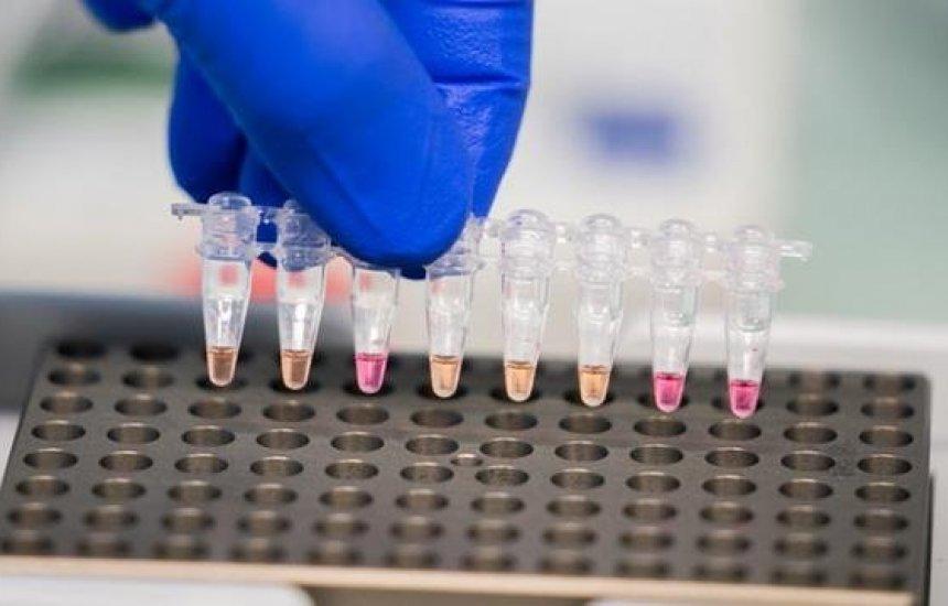 [Novavax deve iniciar testes de fase 3 de vacina contra covid-19 nas próximas semanas]