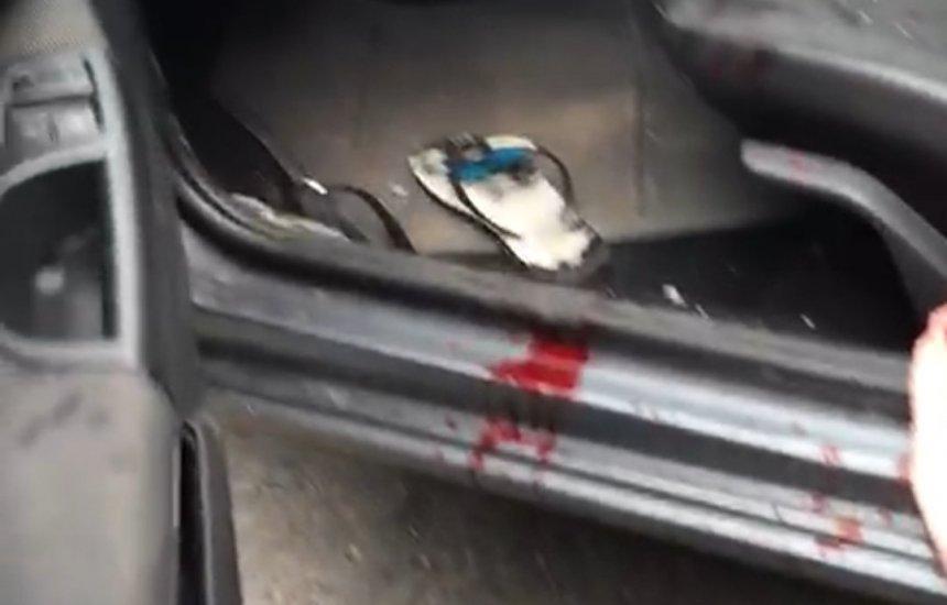 [Violência: Homem tenta assaltar clínica e é baleado em Camaçari]